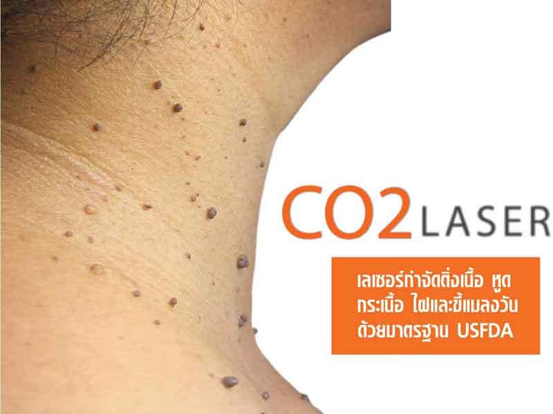 เลเซอร์ CO2