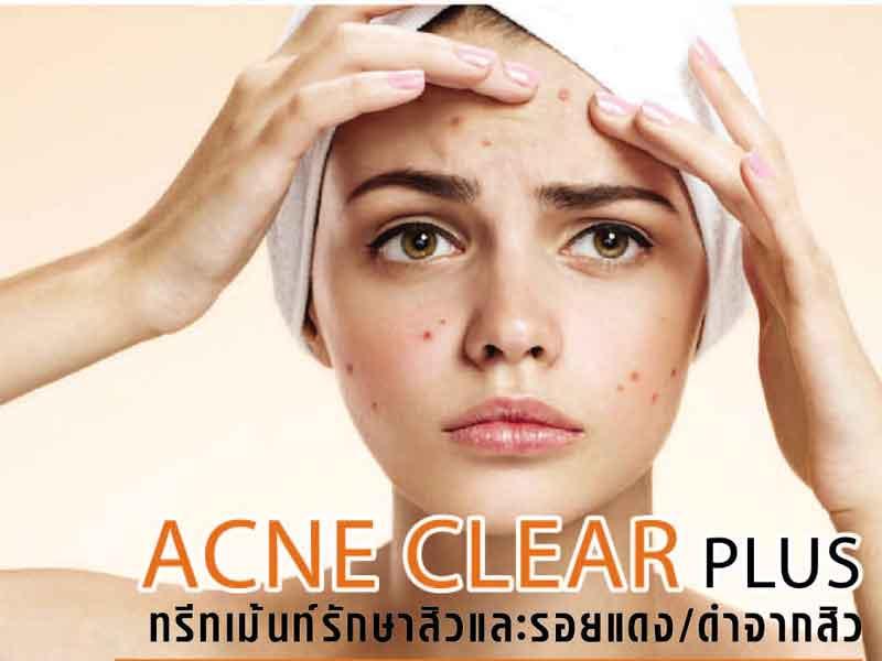 รักษาสิว acne clear plus