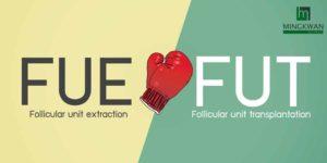 Read more about the article ข้อดี-ข้อเสีย? เลือกอย่างไรระหว่างปลูกผม FUE กับ FUT